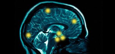 المراكز المسئولة عن القلق في المخ