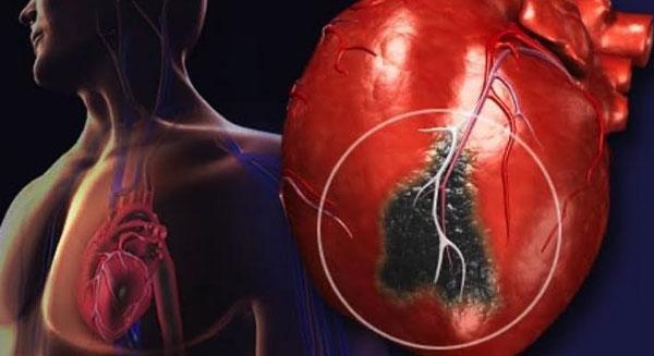 نصف النوبات القلبية تحدث فجأة